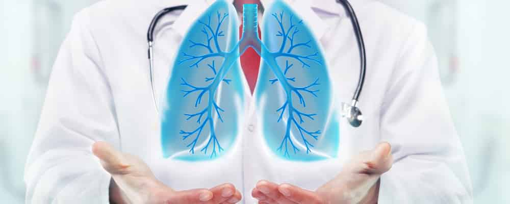 Cancerul pulmonar microcelular
