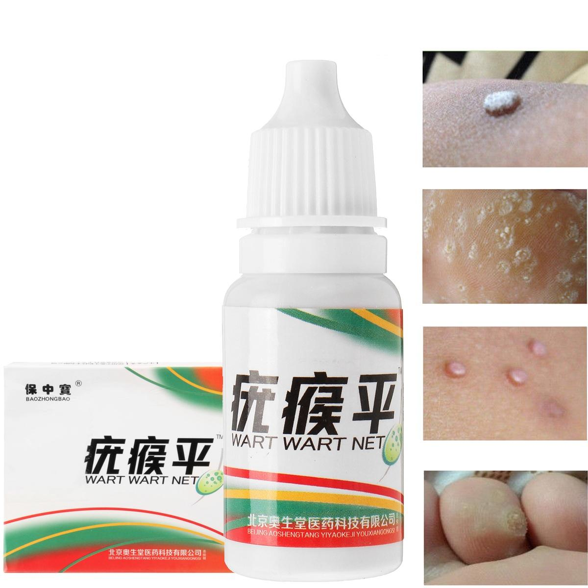 wart medicine on skin tags