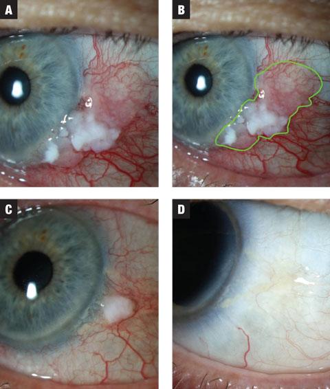 conjunctival papillomas prognosis