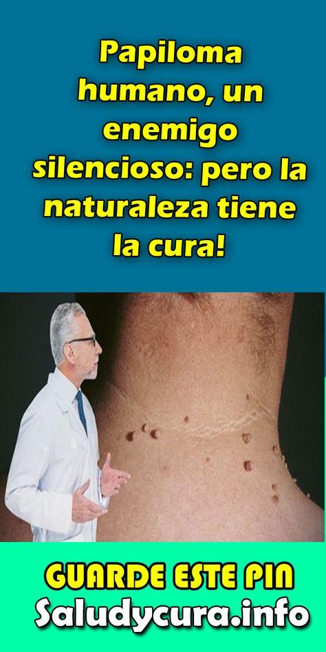 papiloma no tiene cura