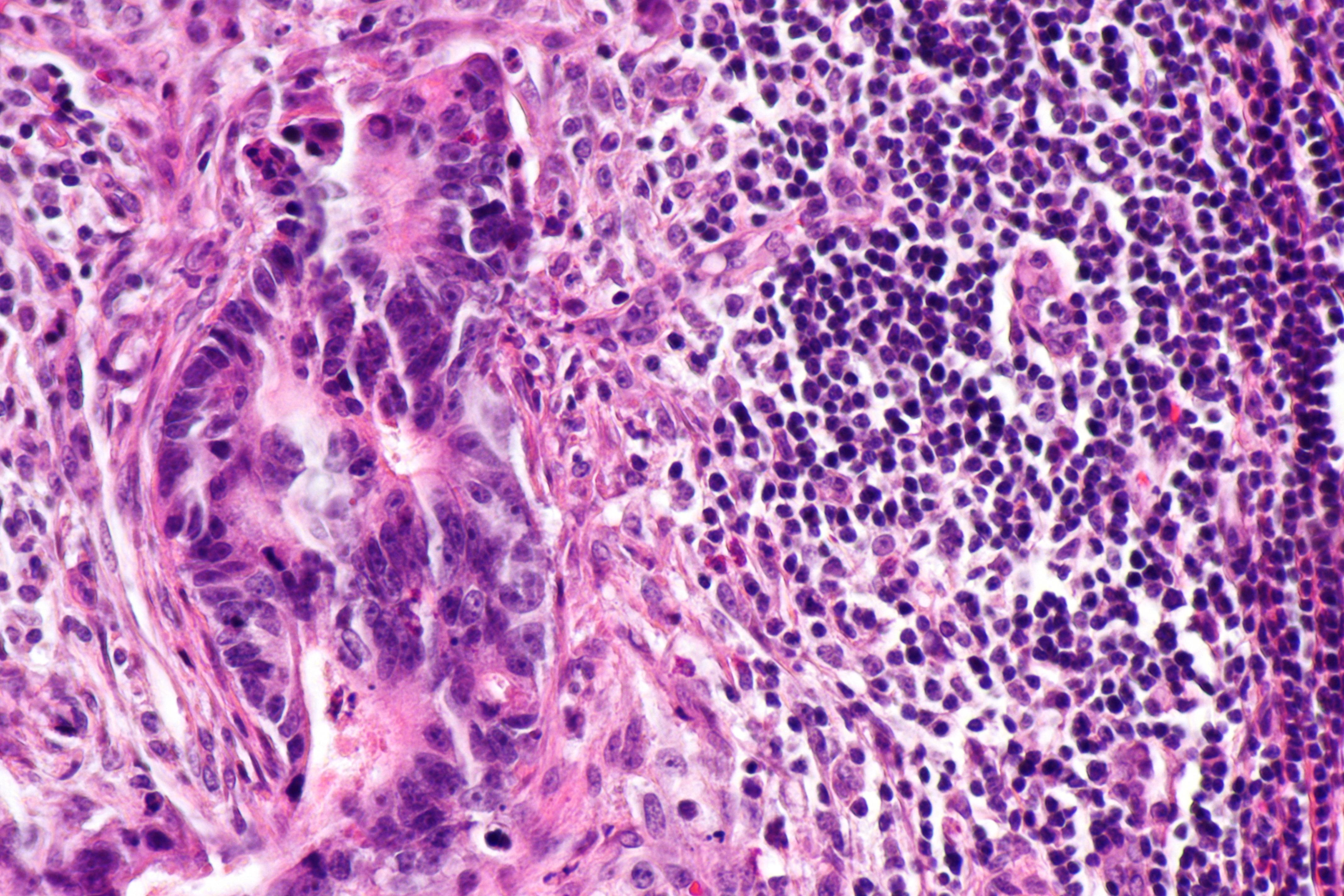 colorectal cancer lymph node metastasis)