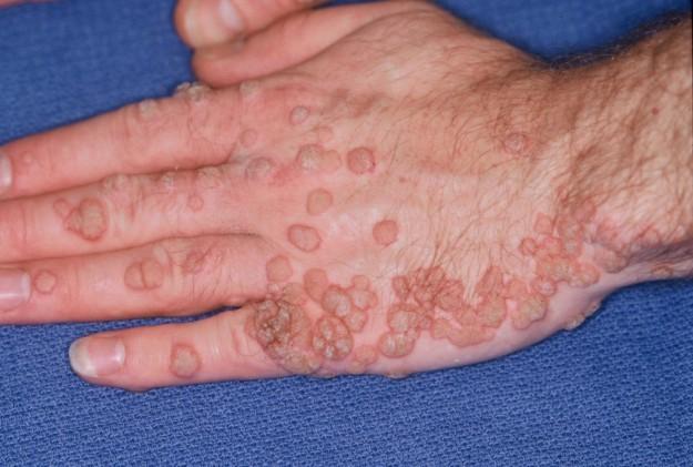 verruche da papilloma virus)