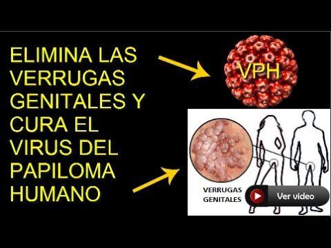 virus papiloma humano eliminar