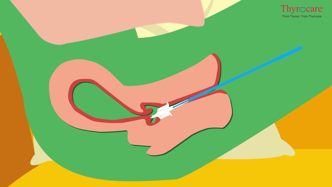 hpv impfung nach ansteckung cancerul de col uterin sanse de supravietuire