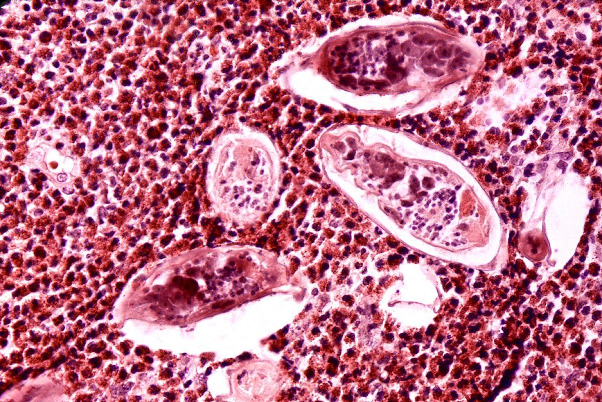 schistosomiasis urinary