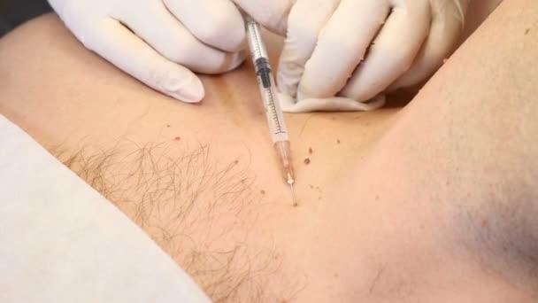 removal of papillomas