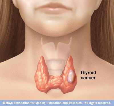 papillary thyroid cancer goiter