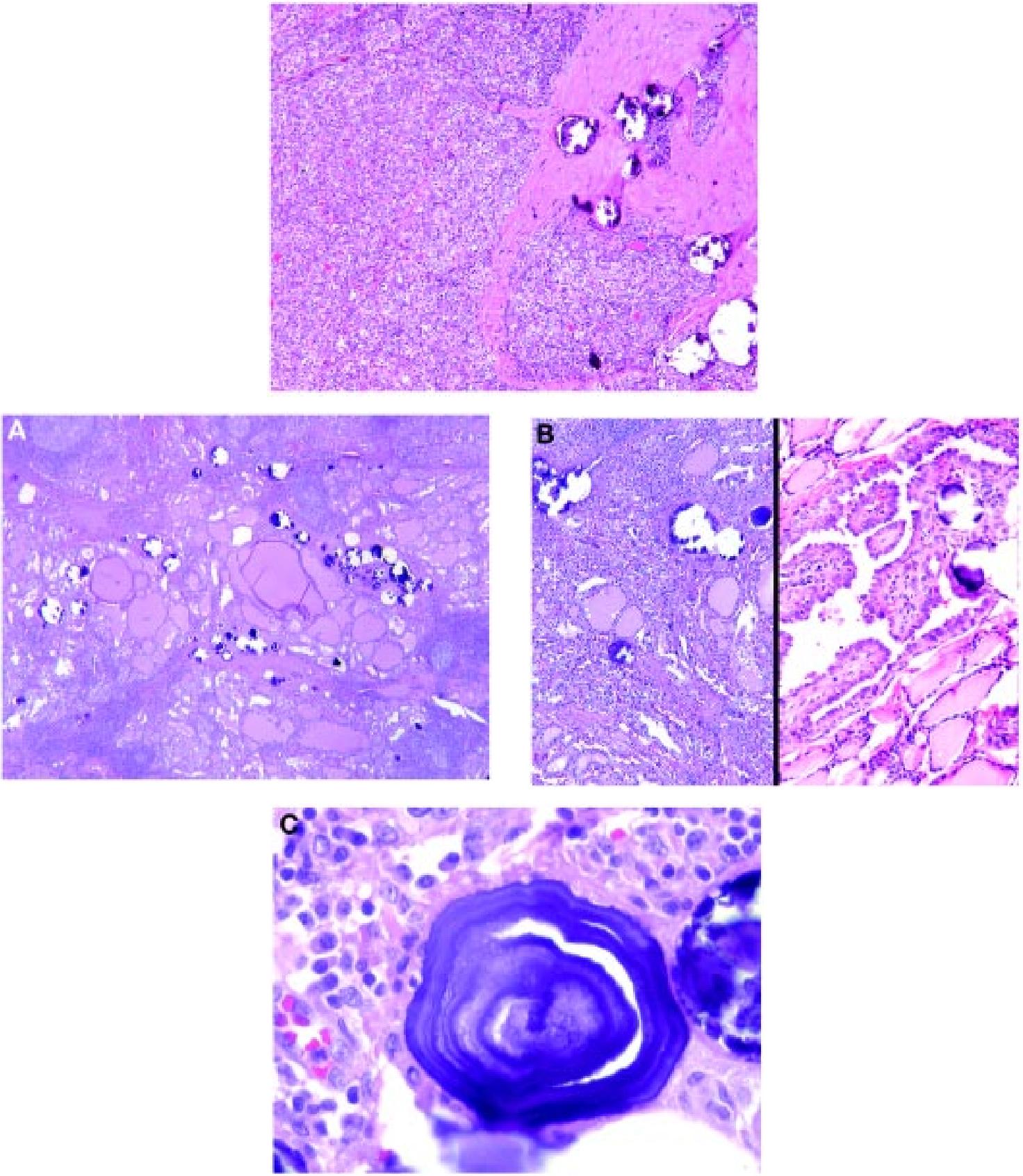 papillary thyroid cancer diffuse sclerosing variant)