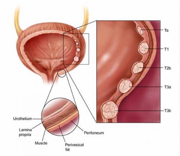 cancerul de vezica urinara tratament papillomavirus et antibiotiques