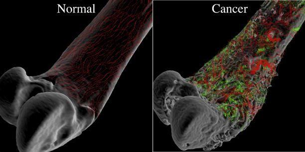 vindecarea cancerului osos)