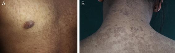 papilomatosis reticulada y confluente tratamiento)