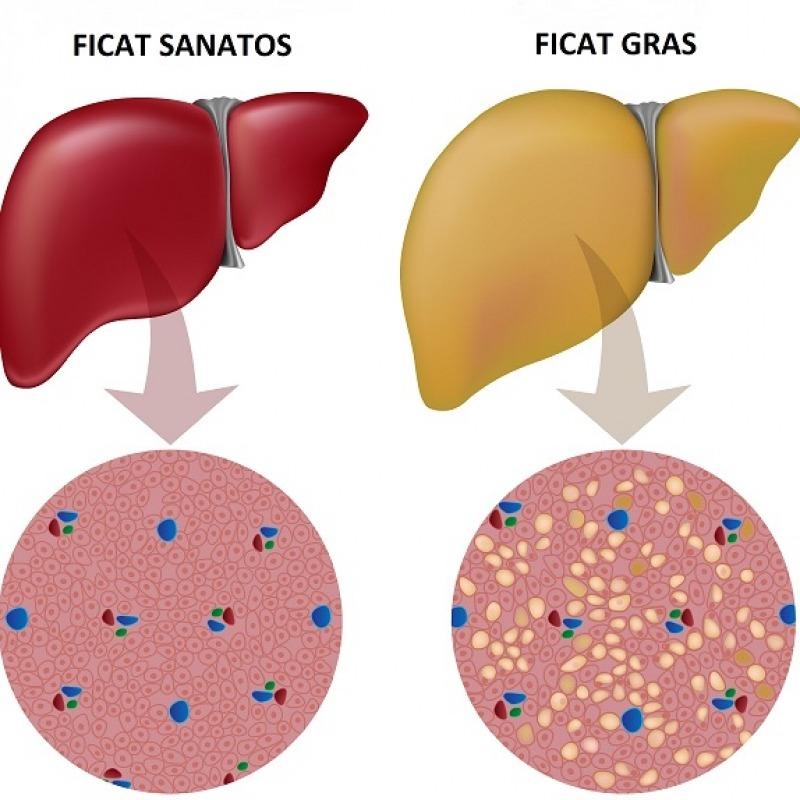 detoxifiere botosani cancerul pulmonar este transmisibil