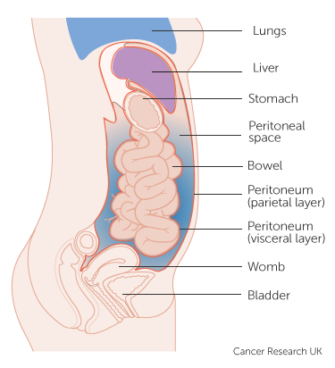 peritoneal cancer stage 4)