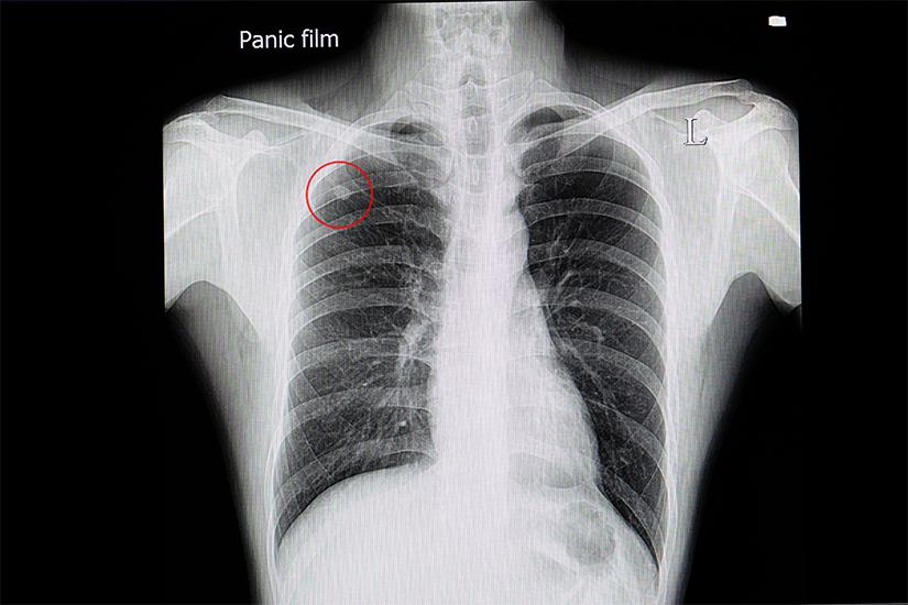 cancerul de plamani se poate vindeca)