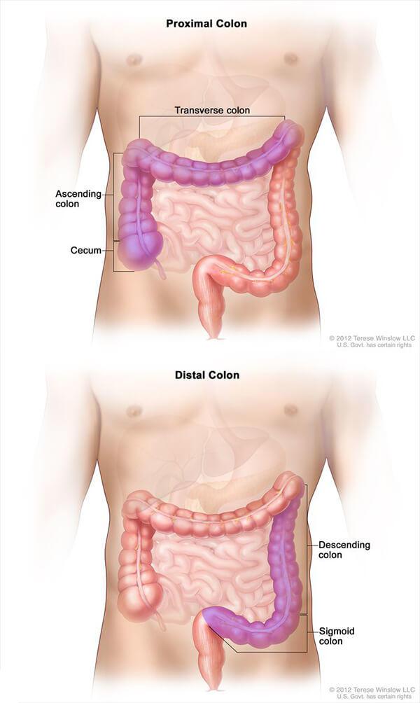 cancer rectal metastaze)
