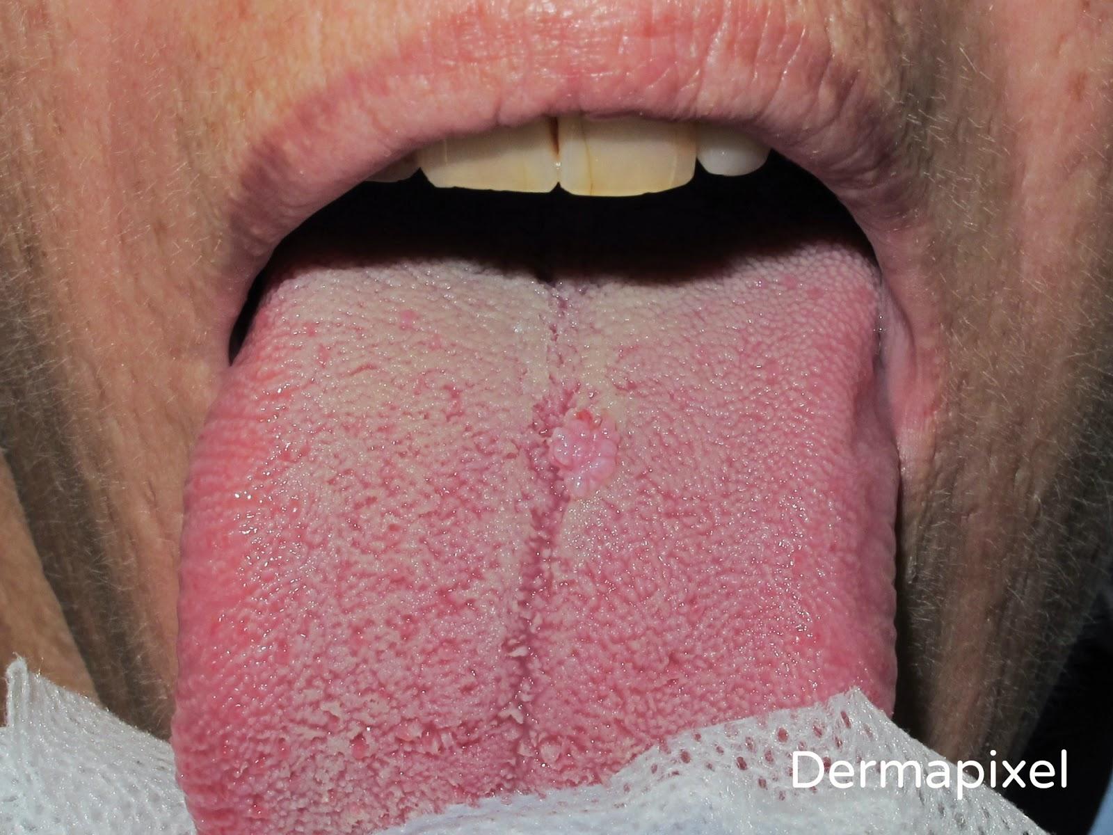 cirugia de papiloma lingual)