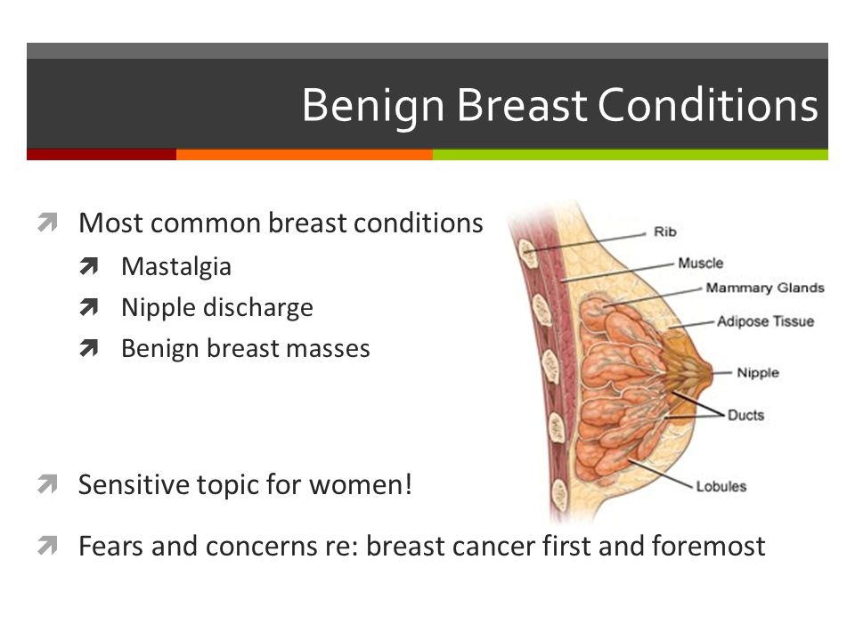 benign cancer of breast)
