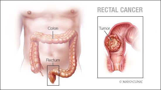 cancer rectal image
