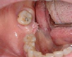 papilloma lesioni papilloma seno c3