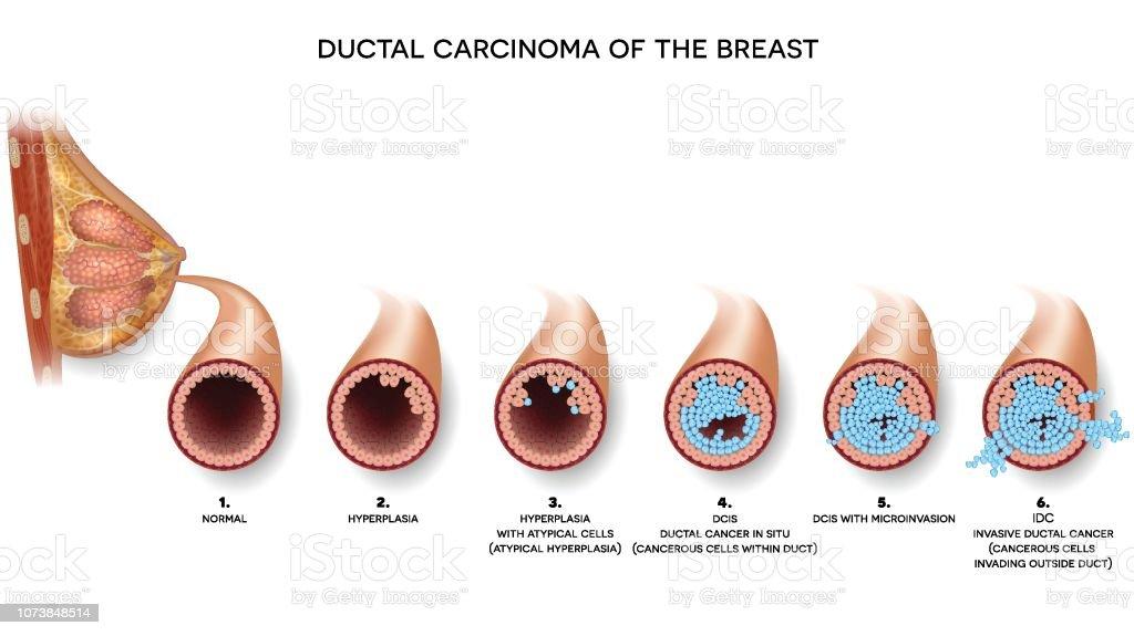 Carcinomul mamar ductal in situ - o entitate separata