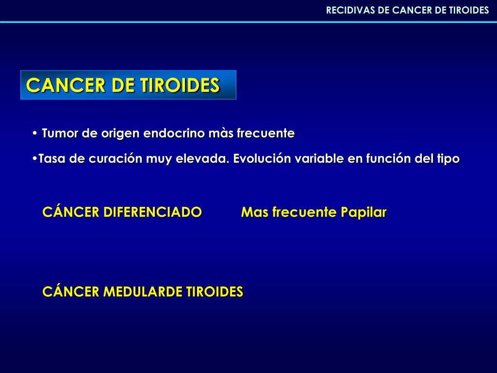 cancer de tiroides mas frecuente