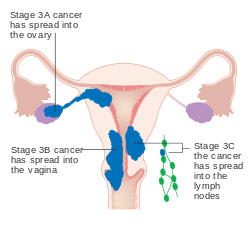 endometrial cancer is