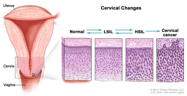 hpv precancerous cells stages