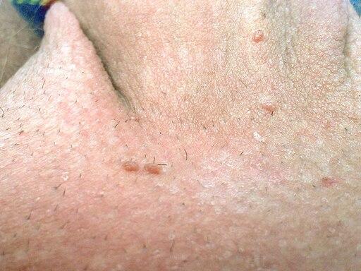 human papilloma virus ansteckung remediu pentru toți paraziții din organism