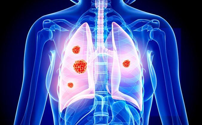 Poţi identifica o mutaţie canceroasă? | asspub.ro