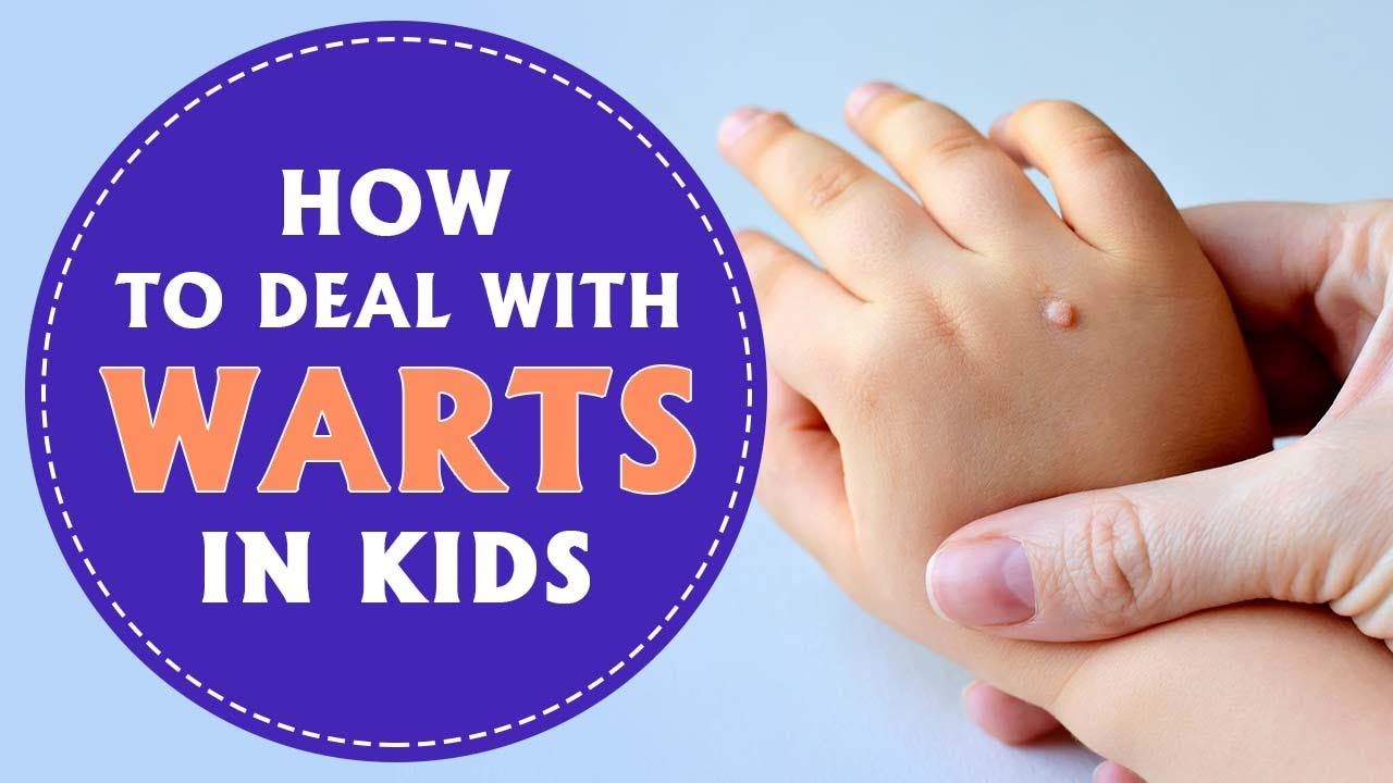 wart treatment toddler