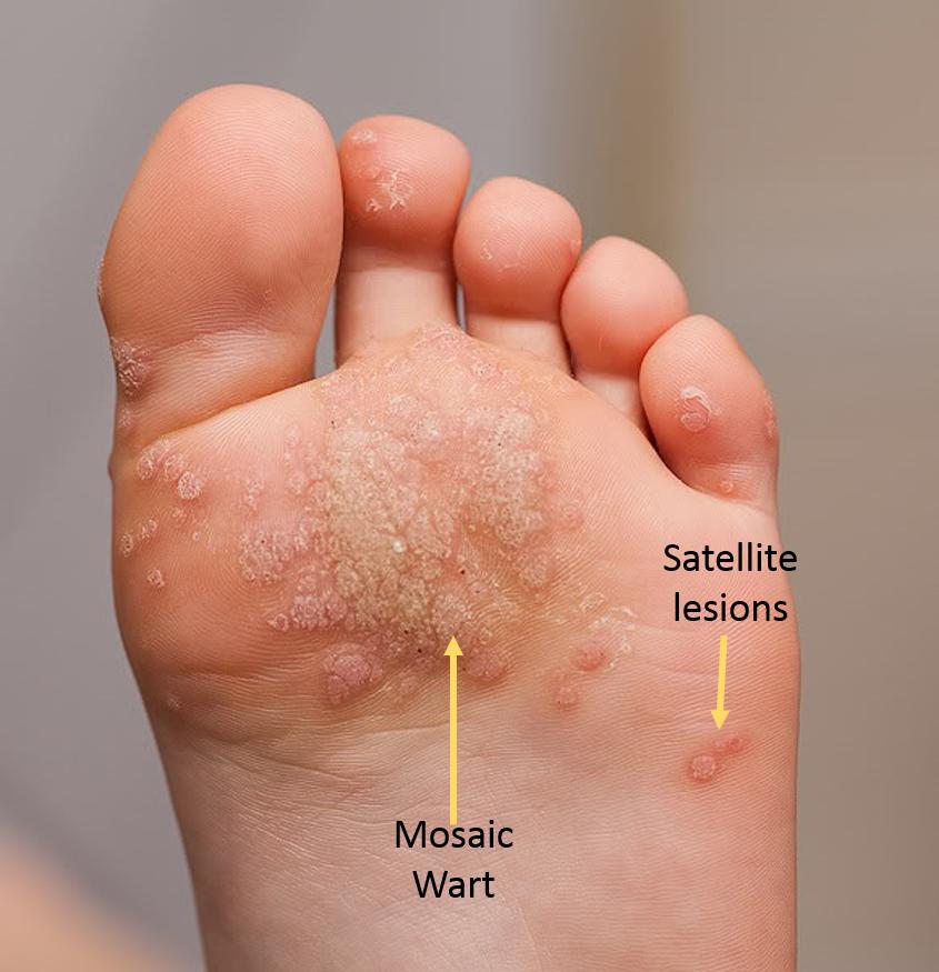 wart treatment blister)