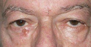 rimozione papilloma palpebrale