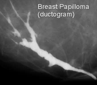 papilloma wart in breast