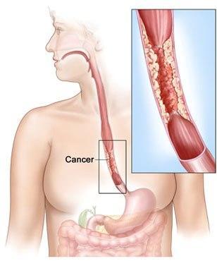 cancer malign la esofag)