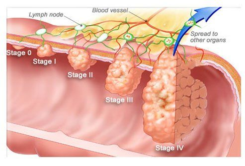cancer la colon)