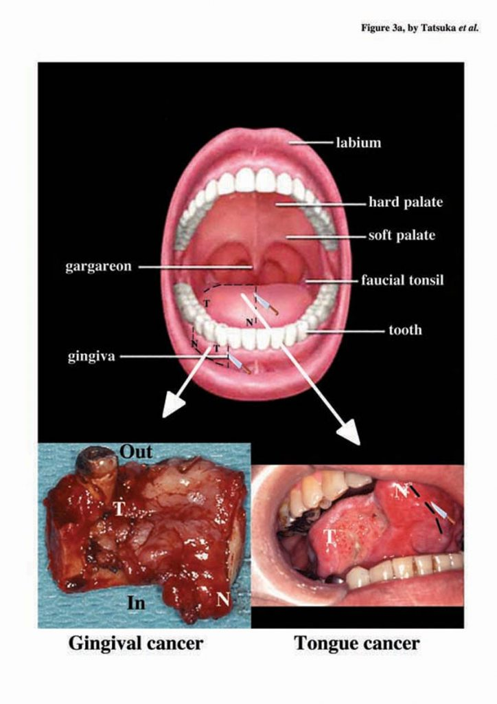 virus papiloma maligno cervical cancer x ray