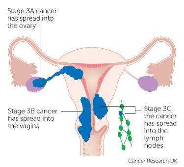 Pancreatic - Traducere în română - exemple în engleză   Reverso Context