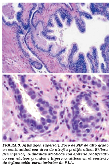cancer de prostata histopatologia)