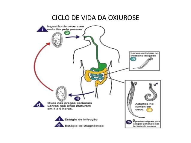 vermes oxiuros tratamento