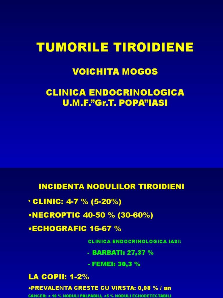 Cancer tiroidian - Tot ce trebuie să ştii | Cancer