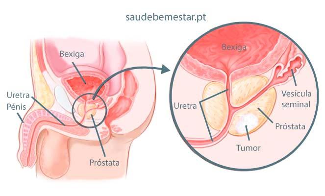 cancer de prostata pode matar)