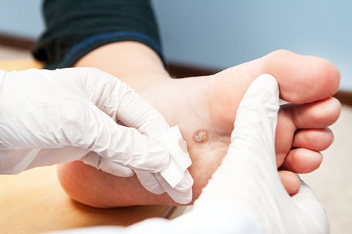 wart on foot while pregnant)