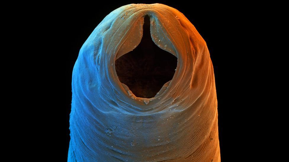helminth treatment crohns disease)
