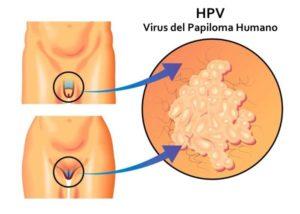 que es virus del papiloma humano en mujeres