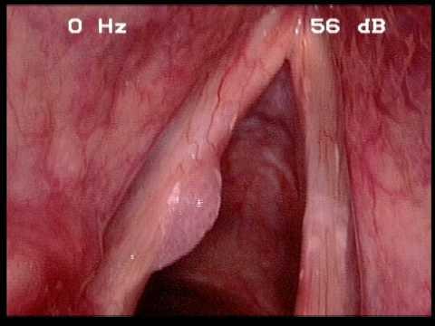 papiloma de laringe tratamento)