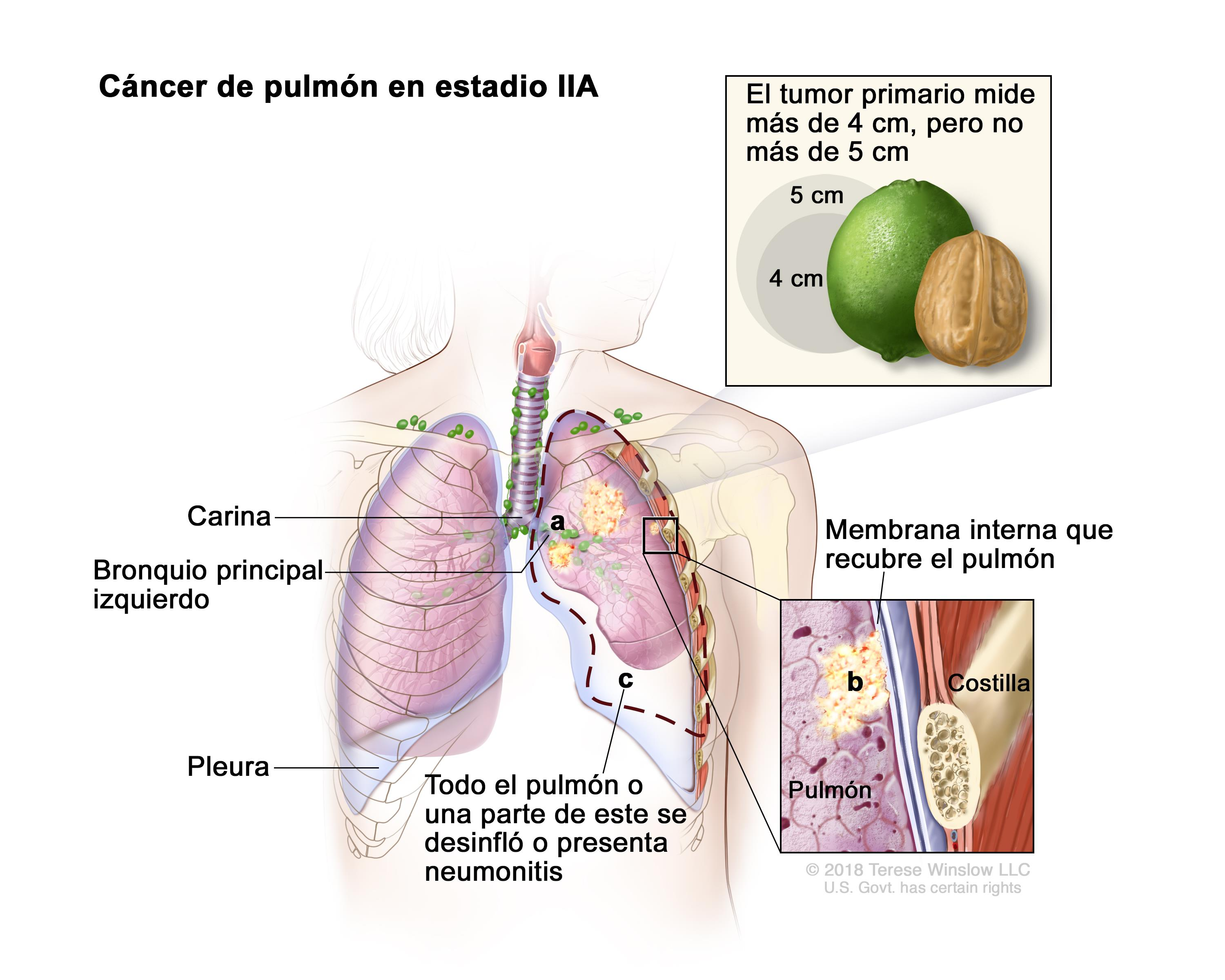 cancer bronquio pulmonar