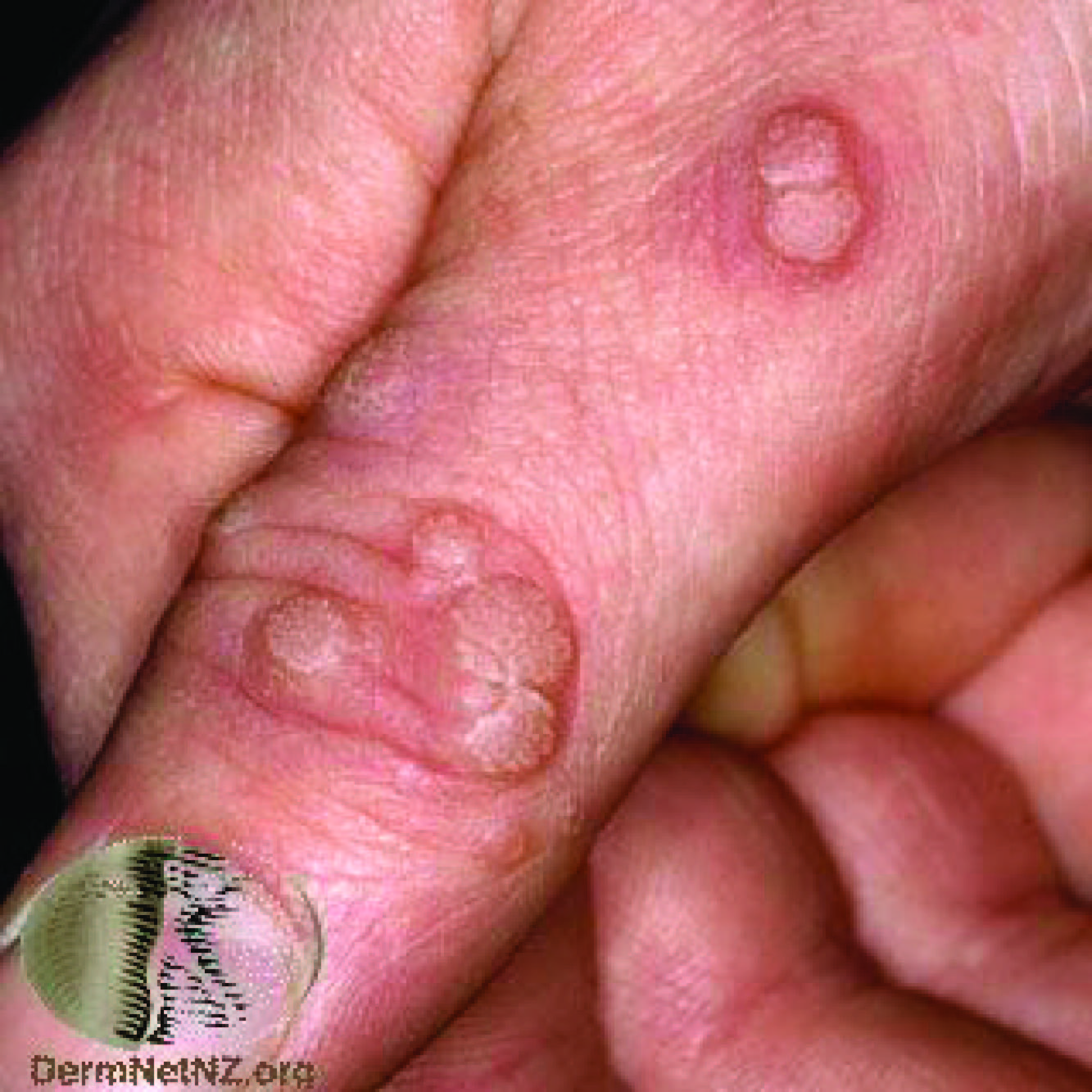 wart treatment dermnet
