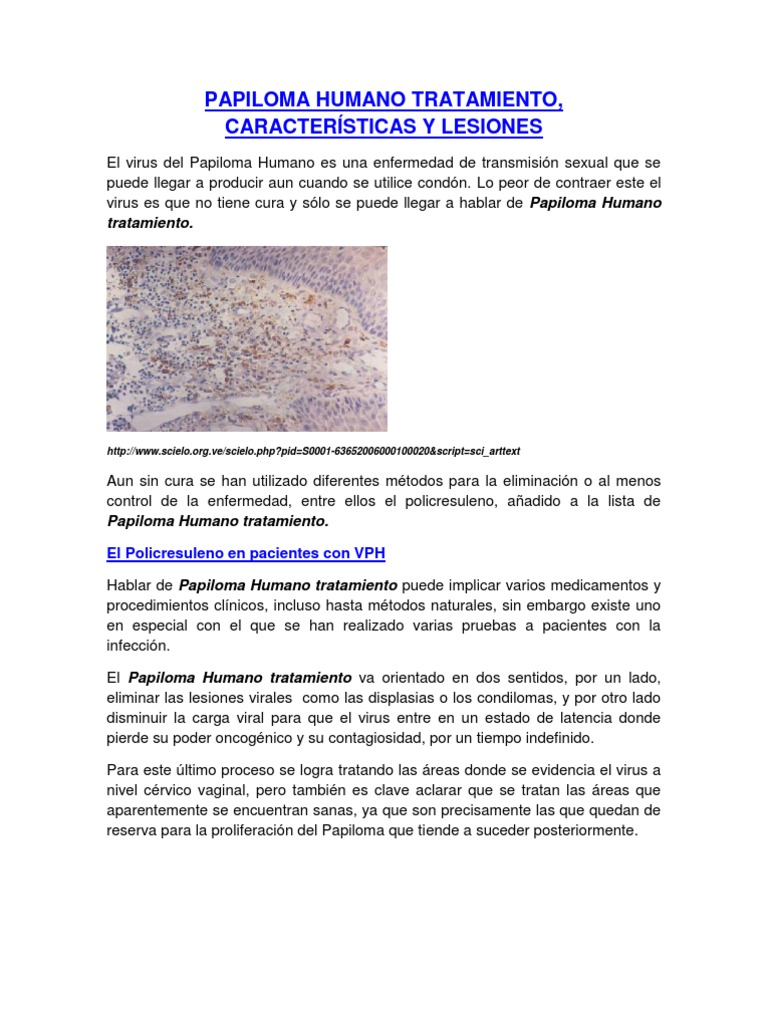 virus del papiloma humano tratamiento peru