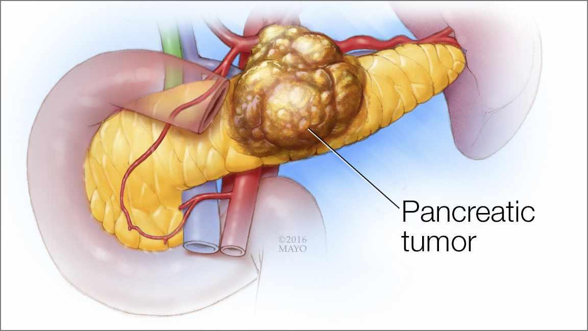 cancer de pancreas quimio