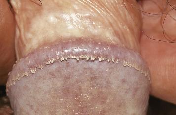 human papillomavirus and genital warts)